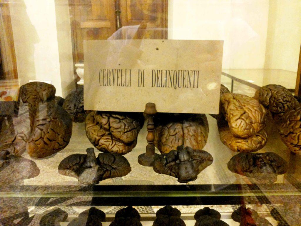 Museo di Anatomia Umana di Torino